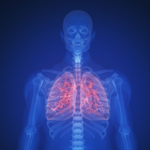 AI can help make lung cancer screenings more accurate.