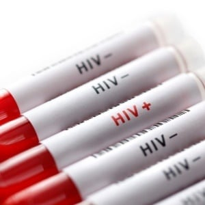 Your attitude toward your HIV status is very impor