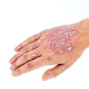 Diluted bleach may relieve eczema.