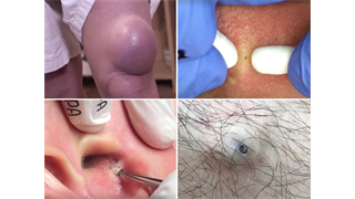 Watch Dr  Pimple Popper perform a 'Macgyver cyst punch,' a