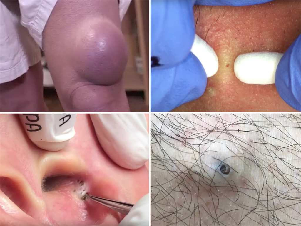 The best pimple popping videos of 2018, from a 50-year-old
