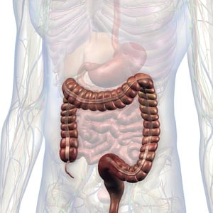 A man's colon had to be removed because of chronic constipation.