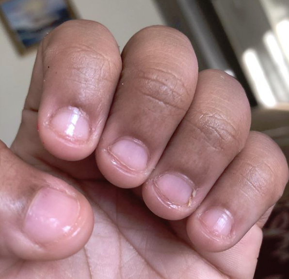 Nail Biting Artinya: HOW TO STOP BITING YOUR NAILS