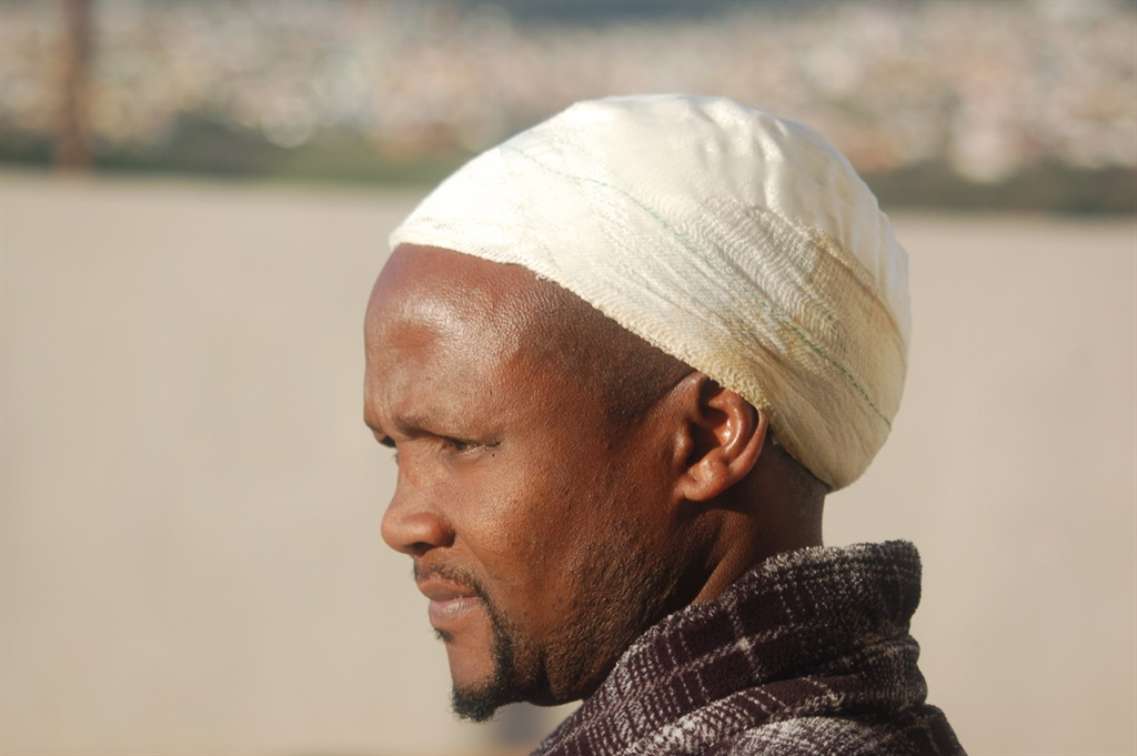 Vuyani Zinto, chair of an SMME business forum in KwaNobuhle, had his head bandaged after a ward committee member poured petrol on him and set him alight in rivalry over a municipal tender. (Thamsanqa Mbovane, GroundUp)