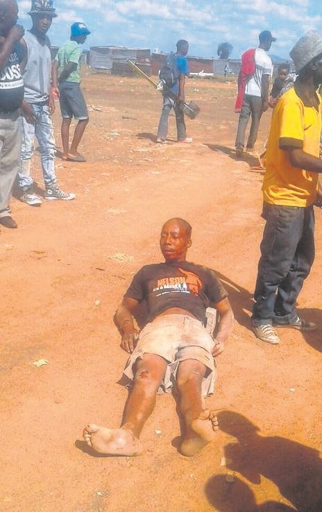 Leeba Motaung after allegedly being dragged for 50 m by a police vehicle which drove over both his legs on 26 November 2016 at Caleb Motshabi, a settlement being developed in Bloemfontein. Photo: Supplied