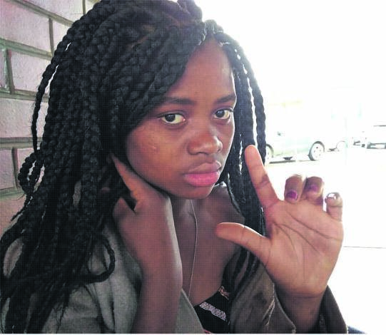Amahle Mkhize (14) suffered a severe electric shock when she touched an exposed wire from an illegal connection in Northdale.PHOTO: kerushun pillay