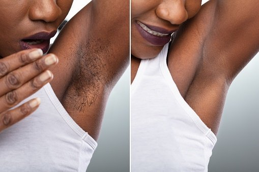 Before And After Concept Of Womans Underarm Hair R
