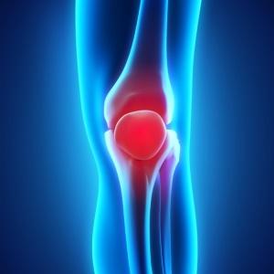 Arthritic knee - iStock