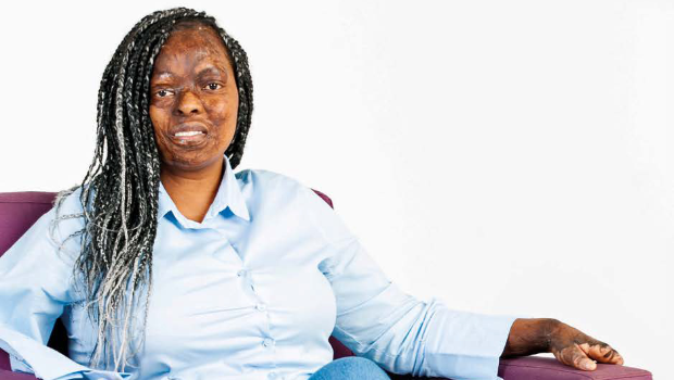 Itumeleng Seku has become a motivational speaker as a result of the challenges she's had to overcome in life (Photo: YOU/Lubabalo Lesolle)