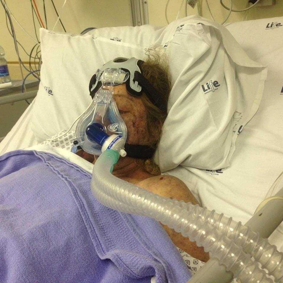 Shan was twee weke lank in 'n geïnduseerde koma.
